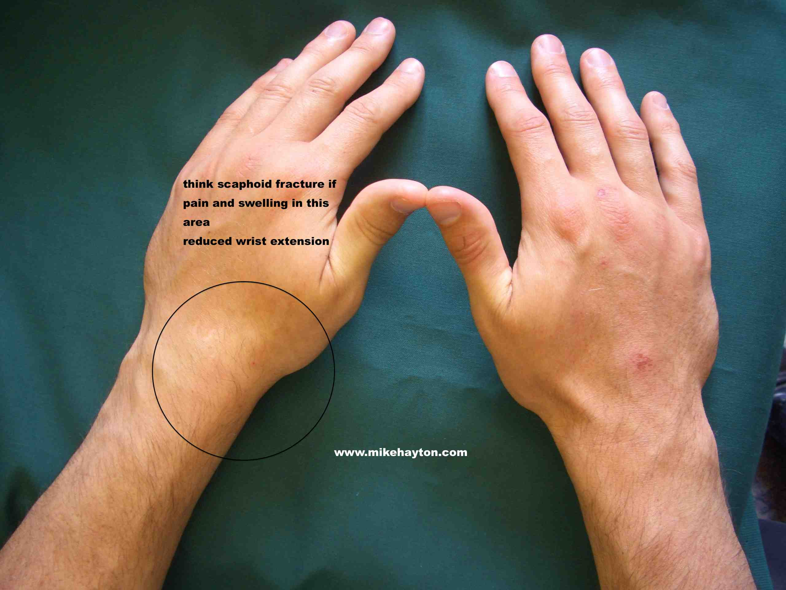 scaphoid fracture thumb numbness